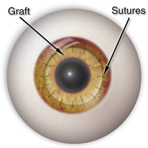 And corneal theory tissue technique surgery pdf